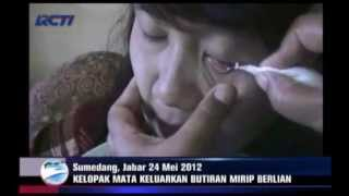 Download lagu VIDEO- Sudah 84 'Mutiara' Keluar dari Mata Tina.mp4