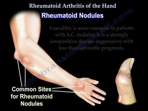 Rheumatoid Arthritis of the hand - Everything You Need To Know - Dr. Nabil Ebraheim