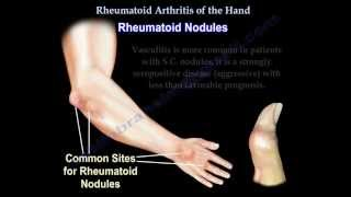 Rheumatoid Arthritis of the hand - Everything You Need To Know - Dr. Nabil Ebraheim