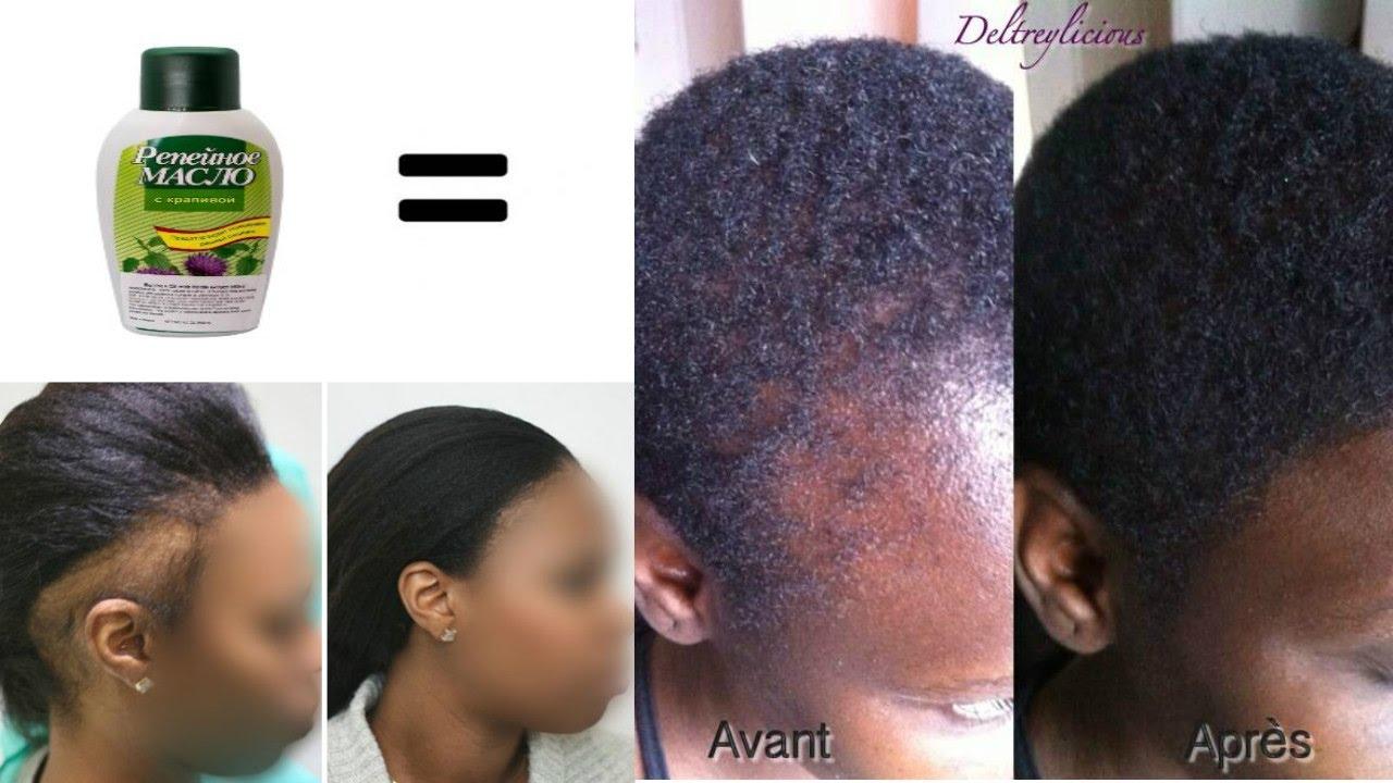 Faire pousser les cheveux des tempes