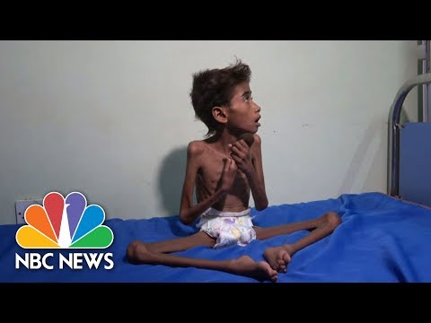 The Face Of Suffering: Famine, Cholera Wreak Havoc In War-To