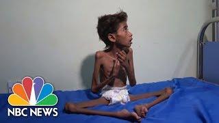 The Face Of Suffering: Famine, Cholera Wreak Havoc In War-Torn Yemen | NBC News