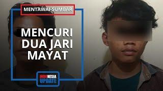 Bocah 9 Tahun di Bekasi Mengidap Penyakit Langka.