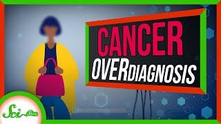 When You Have Cancer, But You're Fine: Cancer Overdiagnosis