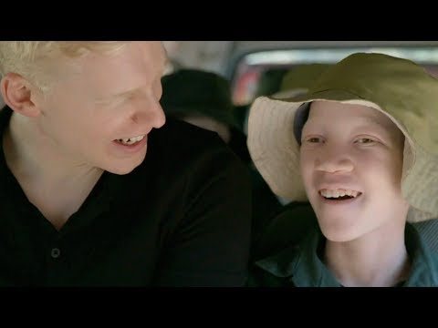 Born Too White - Being Albino In East Africa | Medical Documentary | Reel Truth. Science