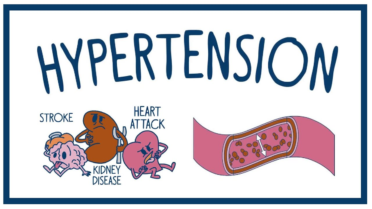 Much More You Need to Know About High Blood Pressure (Hypertension)