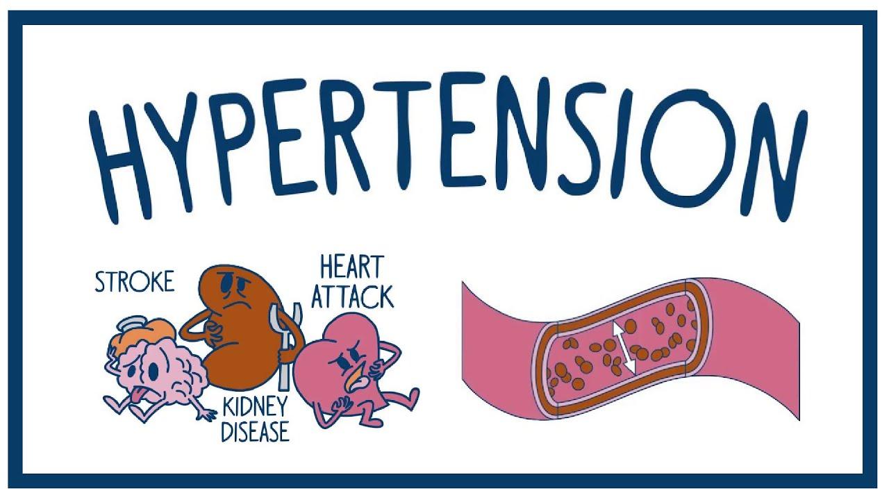 Hypertension  >> Uva Hypertension Explanation Dhd Films Youtube