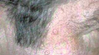 Sebaceous Hyperplasia NYC - (212) 644-6454 - NYC Sebaceous Hyperplasia - New York, NY Thumbnail