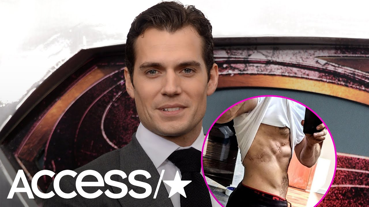 Why Are Henry Cavill's Rock-Hard Abs Covered In Scars?!   Access