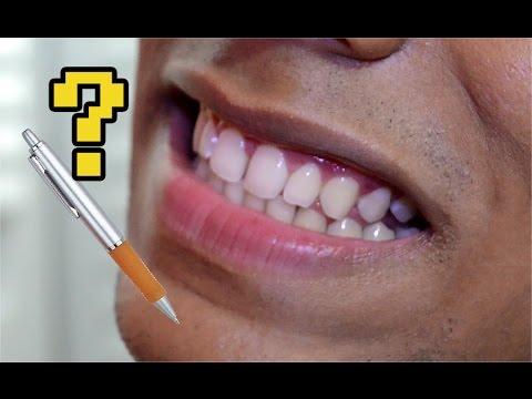 Clareamento Dental Com Uma Caneta Youtube