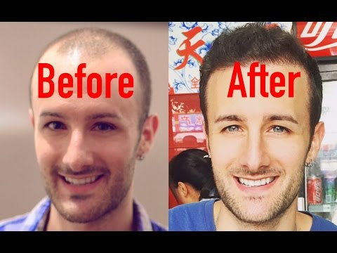 ENTIRE Hair Transplant Surgery Video - Beginning to End