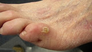Home Remedies for Corn on feet