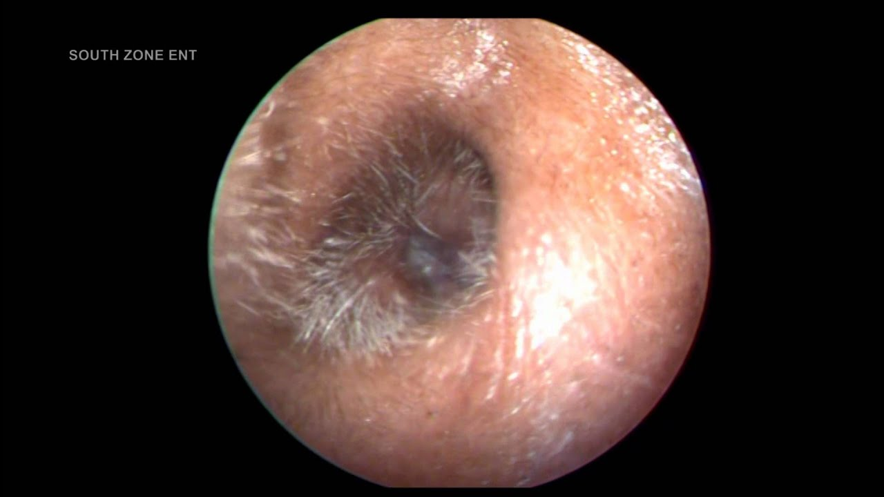 malignant otitis externa.. - youtube, Skeleton