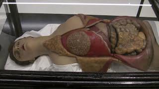 Repeat youtube video Blicke ! Körper ! Sensationen ! Ein Anatomisches Wachskabinett und die Kunst: Ausstellung in Dresden