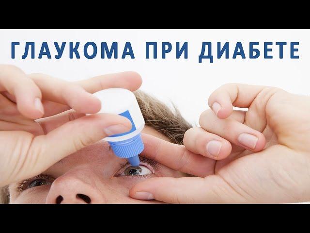 Глаукома при сахарном диабете