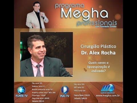 Programa Megha Profissionais - 622 - Parte 2