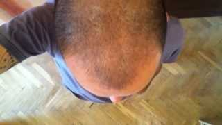Day 137 Hair Regrowth with Rogaine Minoxidil 5%