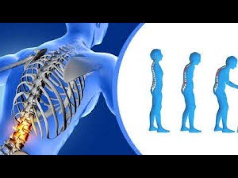 osteoporosis en hombres causas