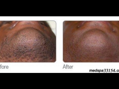 laser hair removal in miami for black men youtube