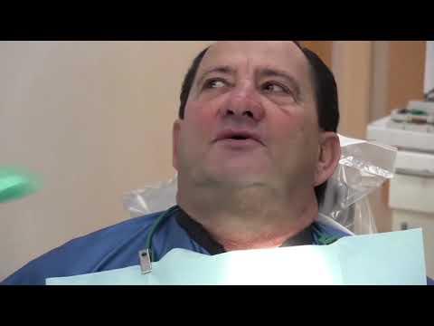 Magic Denture Complete Case Step 1: Pre-Impression