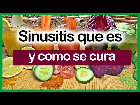 sinusitis que es y como se cura.SINUSITIS tratamiento casero