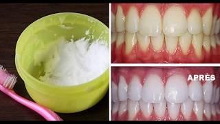 les bienfaits du bicarbonate de soude pour les dents