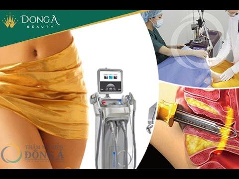 Thẩm mỹ vùng kín không phẫu thuật Laser Vinson - Đông Á