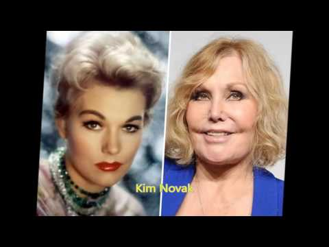 Celebrities Who Ruined Themselves With Plastic Surgery
