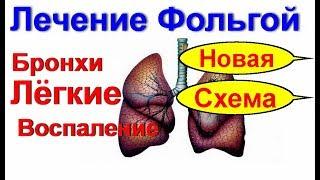 Воспаление легких часть 1. Красная тетрадка и укол в зад. Как я лечу воспаление легких в Украине