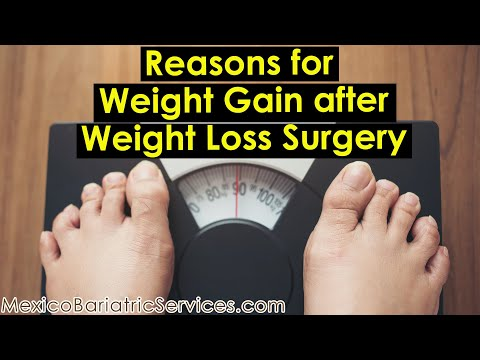 Why you can gain weight after gastric sleeve surgery | Mexico Bariatric Services