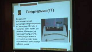 Лечении рака прямой кишки Современные методы(, 2013-10-20T19:25:20.000Z)