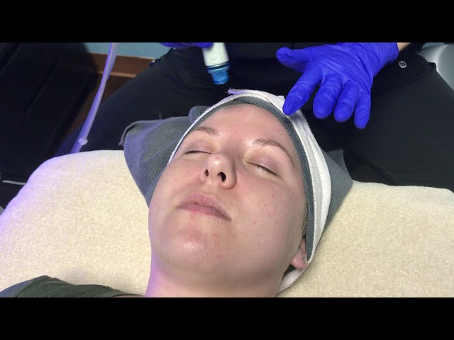 HydraFacial rejuvenates and protects your skin | BodyRx Louisville
