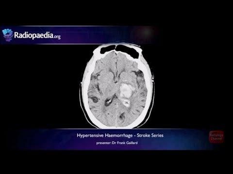Stroke: Hypertensive haemorrhage - radiology video tutorial (MRI, CT) thumbnail