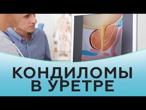 Кондиломы в уретре