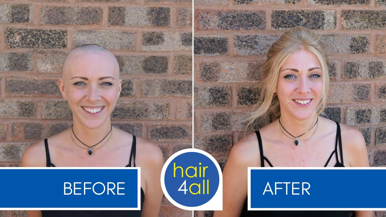 Before Amp After A Non Surgical Hair Replacement System For