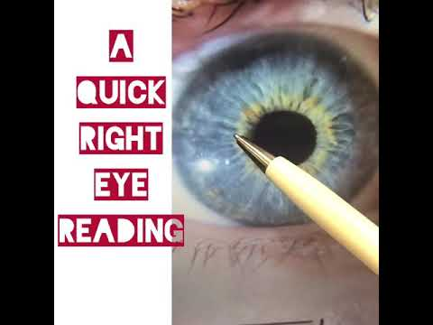 Quick right eye reading -detox and detoxification