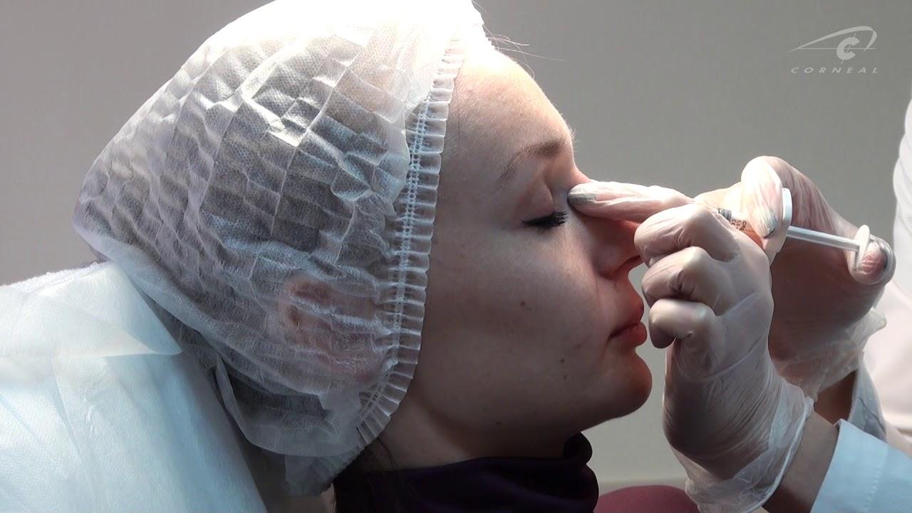 27 сен 2013. Обучение косметологов: москва: (495) 150-33-83 санкт-петербург: (812) 425 -33-83 волгоград: (8442) 96-23-83 бесплатный звонок по.