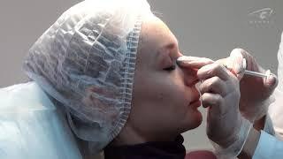 Коррекция носа филлером