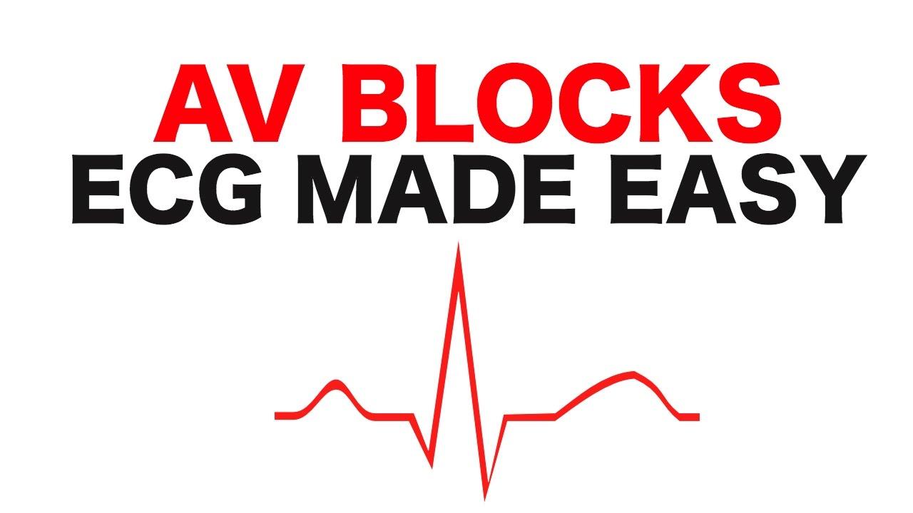 Av Blocks 1st 2nd And 3rd Degree Youtube