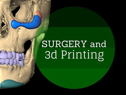 3d printers in medicine and surgery