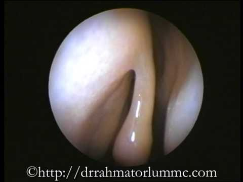 Endoscopic Examination of Normal Nasal Cavity