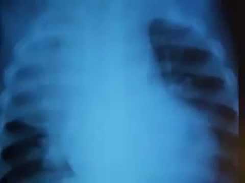 Реферат: Пневмония: клиника, диагностика, лечение