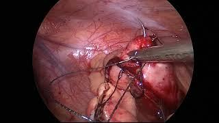 Laparoscopic small bowel resection.  Crohn's with enterocutaneous fistula