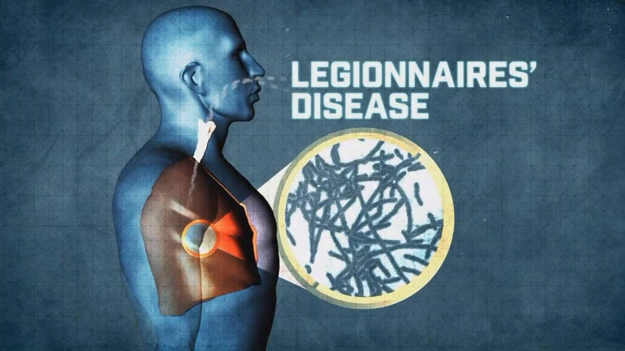 Legionnaires' disease outbreak at Atlanta hotel is now largest ever recorded in Georgia, health official says
