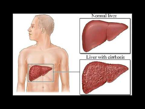 Natural Cures For Cancerous Tumors On Liver