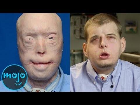 十大最令人惊叹的移植手术 Top 10 Most Impressive Transplants