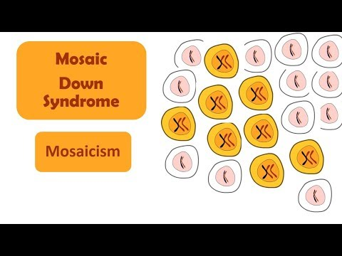Mosaic Down Syndrome | Mosaicism | Down Syndrome