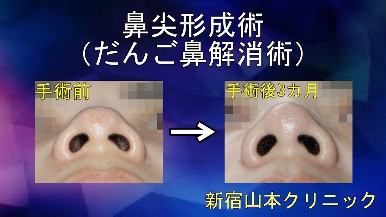 形成 鼻尖