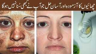 Get Rid of Freckles, Pigmentation Naturally Permanently Get Clear Glowing Skin Urdu Hindi