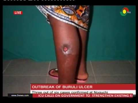 3 out of 6 buruli ulcer cases confirmed at Noguchi - 17/2/2017